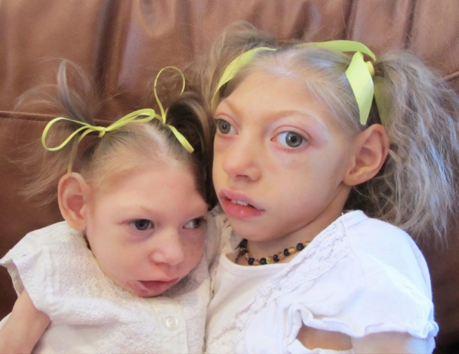children_born_with_microcephaly